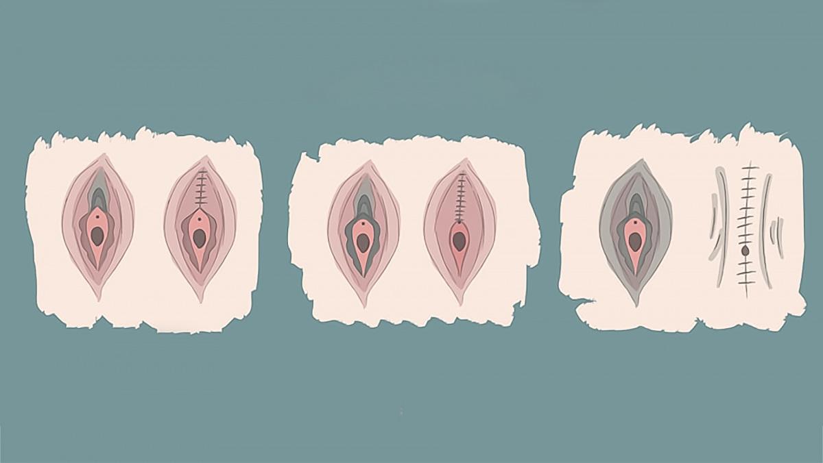 korulmeteles-illusztracio-kezdo_0.jpg