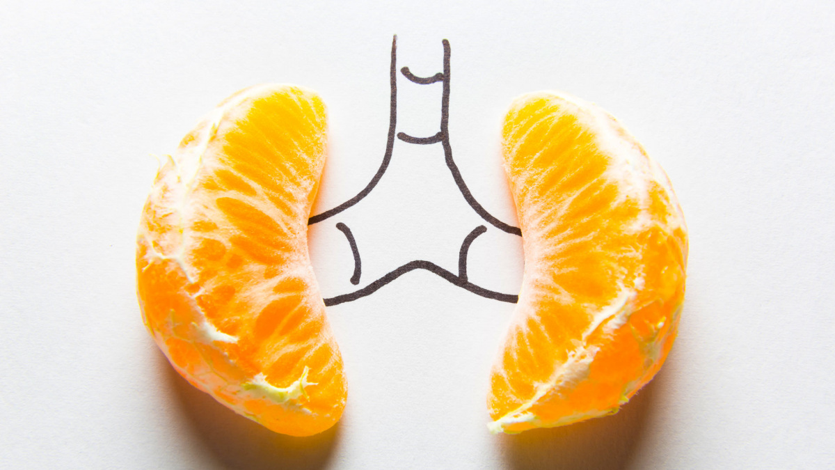 vese-narancs.jpg